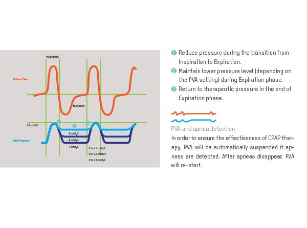 PVA Pressure Variation Algorithm