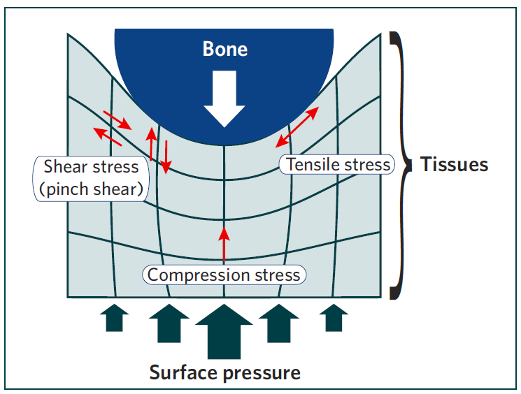 What Is Shear Force